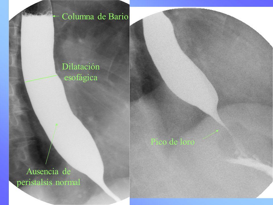 Columna de Bario Dilatación esofágica Pico de loro Ausencia de peristalsis normal