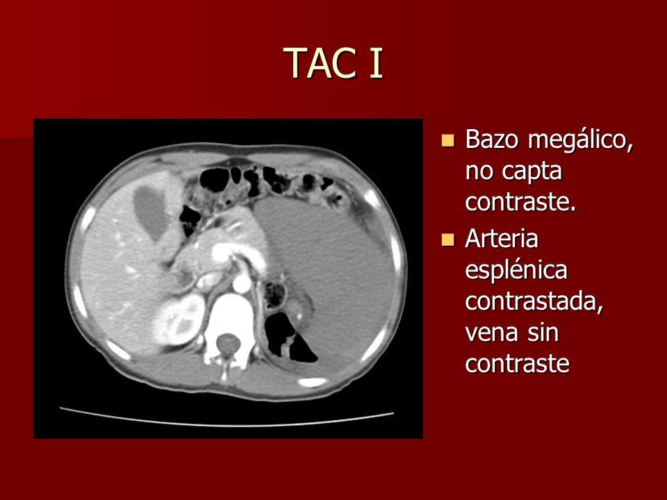 TAC I Bazo megálico, no capta contraste.