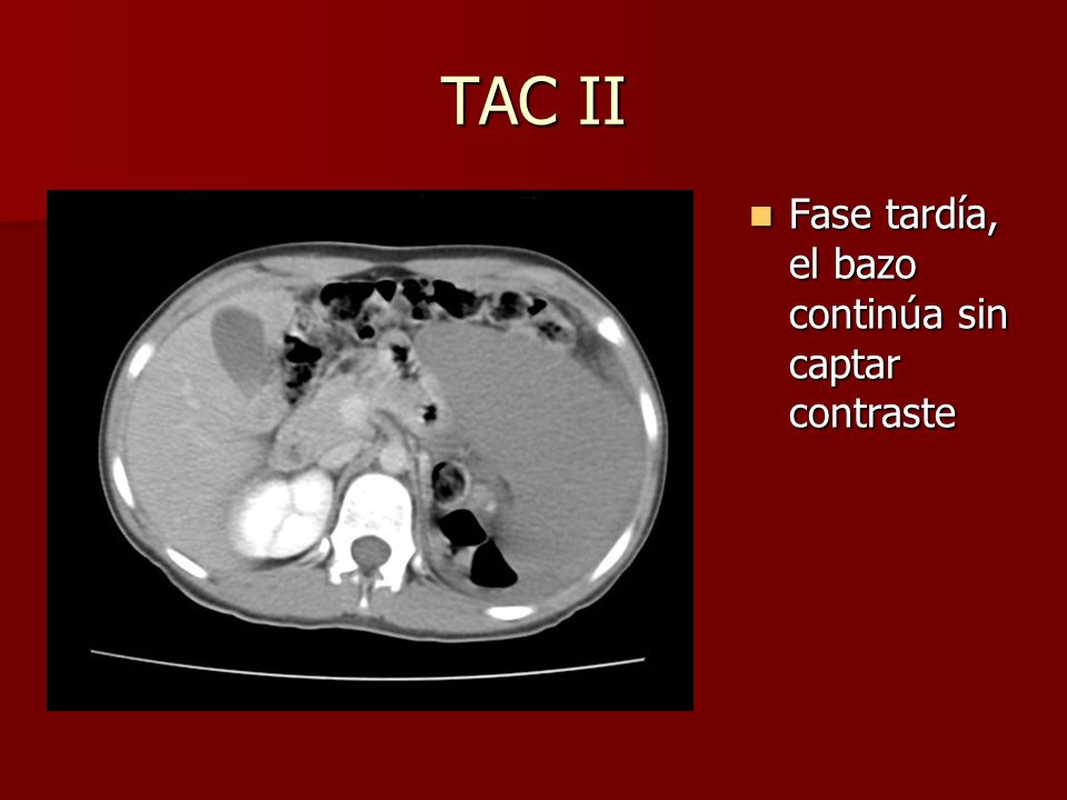 TAC II Fase tardía, el bazo continúa sin captar contraste