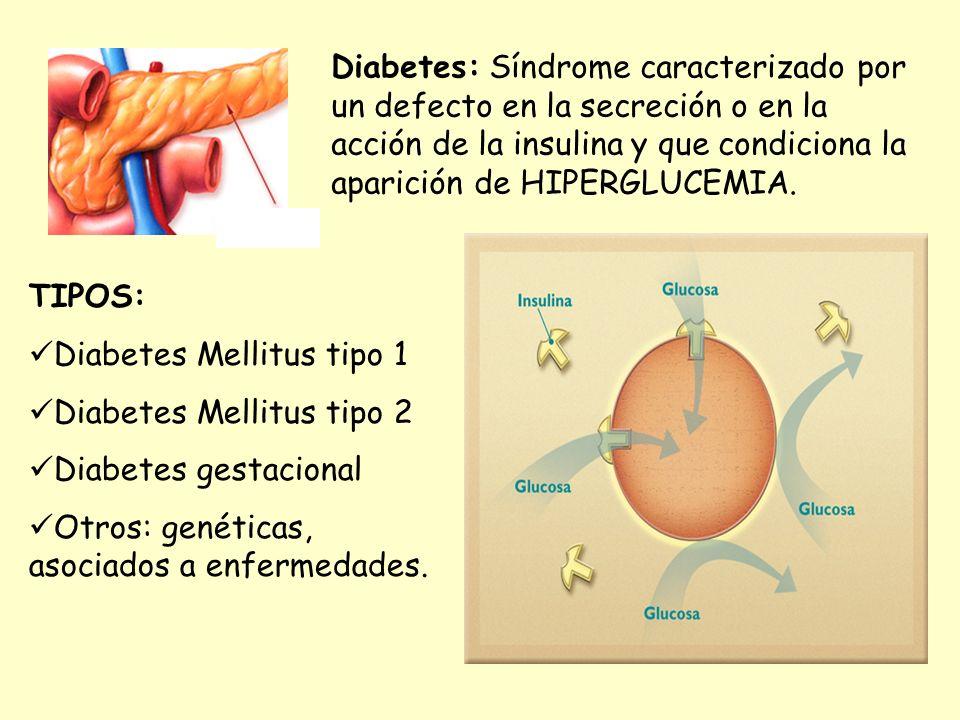 Diabetes Mellitus tipo 1 Diabetes Mellitus tipo 2 Diabetes gestacional