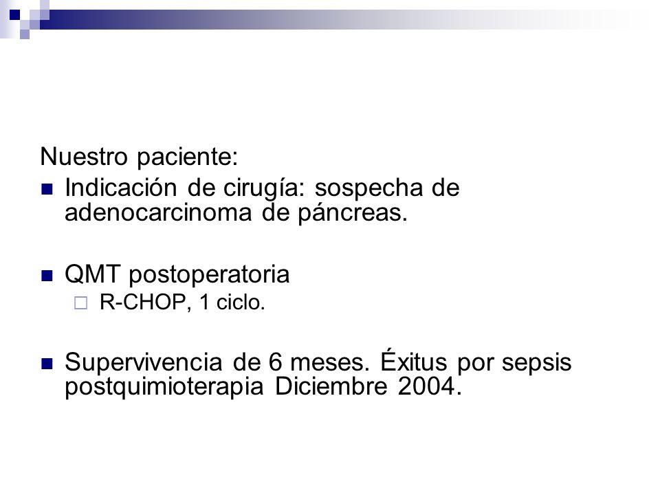 Indicación de cirugía: sospecha de adenocarcinoma de páncreas.