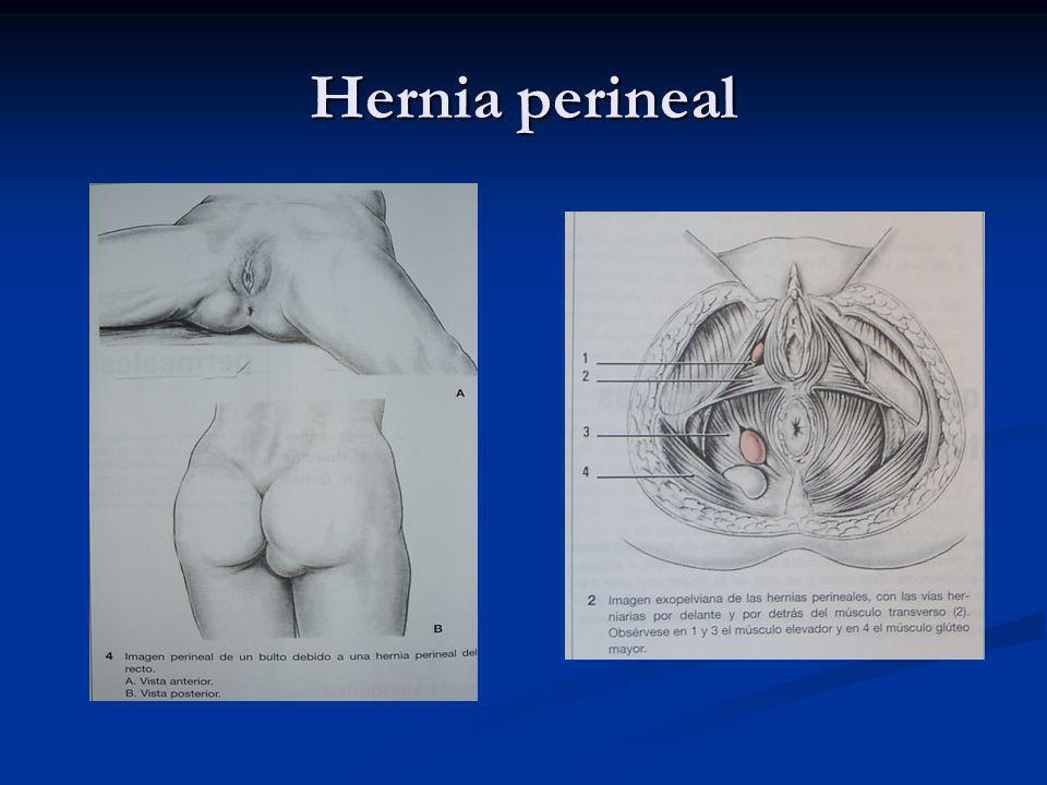 Hernia perineal