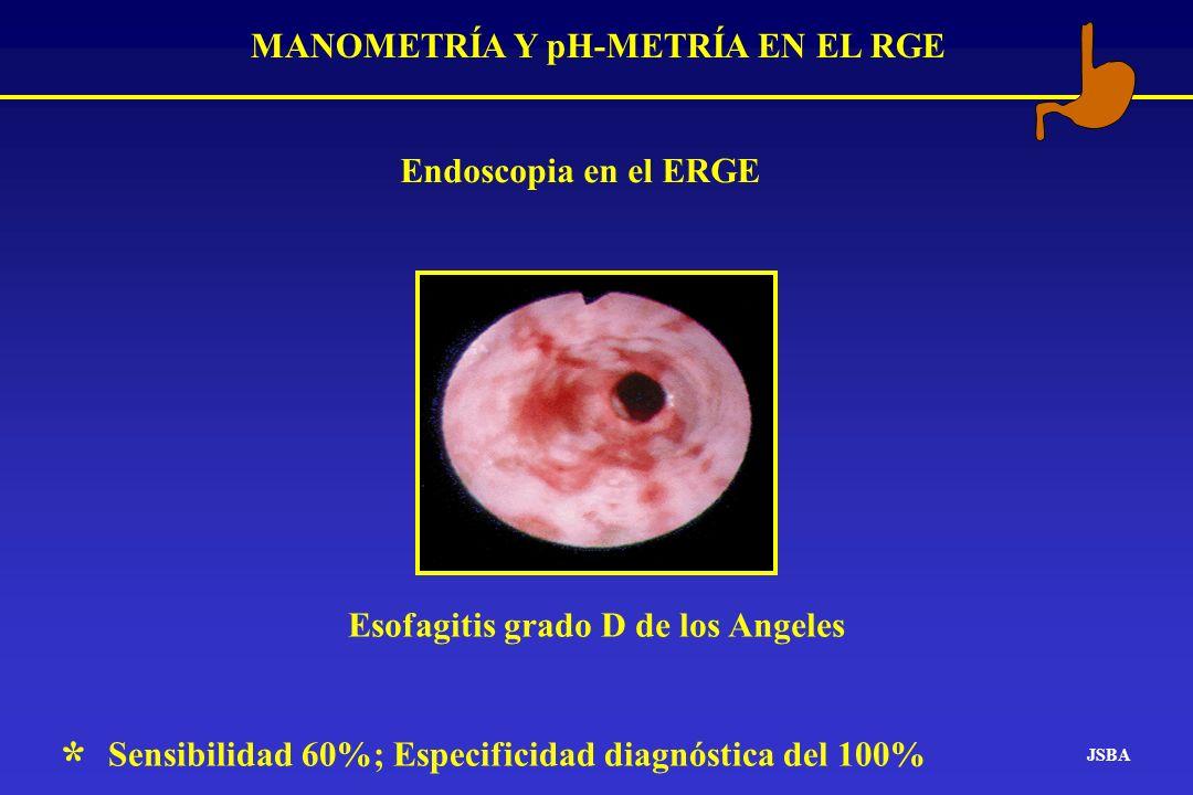 MANOMETRÍA Y pH-METRÍA EN EL RGE Esofagitis grado D de los Angeles