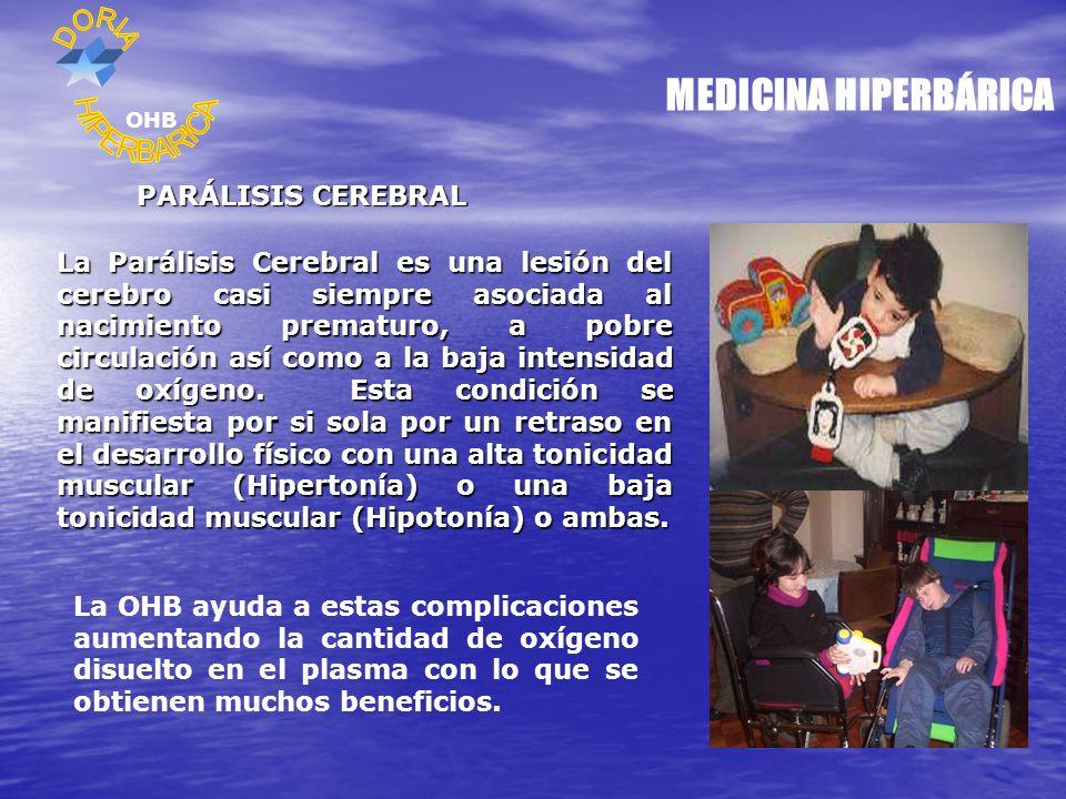MEDICINA HIPERBÁRICA HIPERBARICA PARÁLISIS CEREBRAL