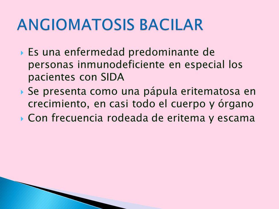 ANGIOMATOSIS BACILAR Es una enfermedad predominante de personas inmunodeficiente en especial los pacientes con SIDA.