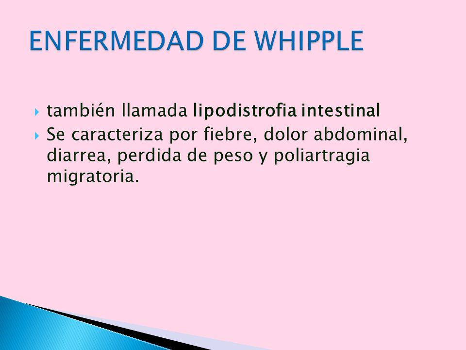 ENFERMEDAD DE WHIPPLE también llamada lipodistrofia intestinal