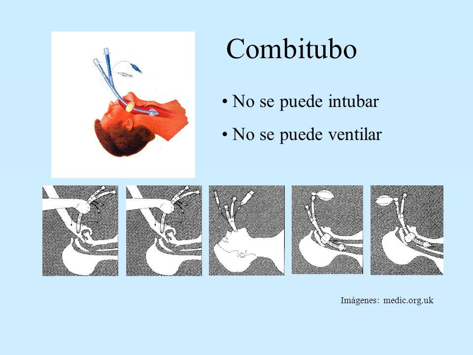 Combitubo No se puede intubar No se puede ventilar