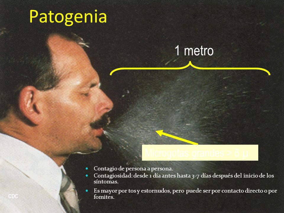 Patogenia 1 metro Microgotas grandes > 5 µ