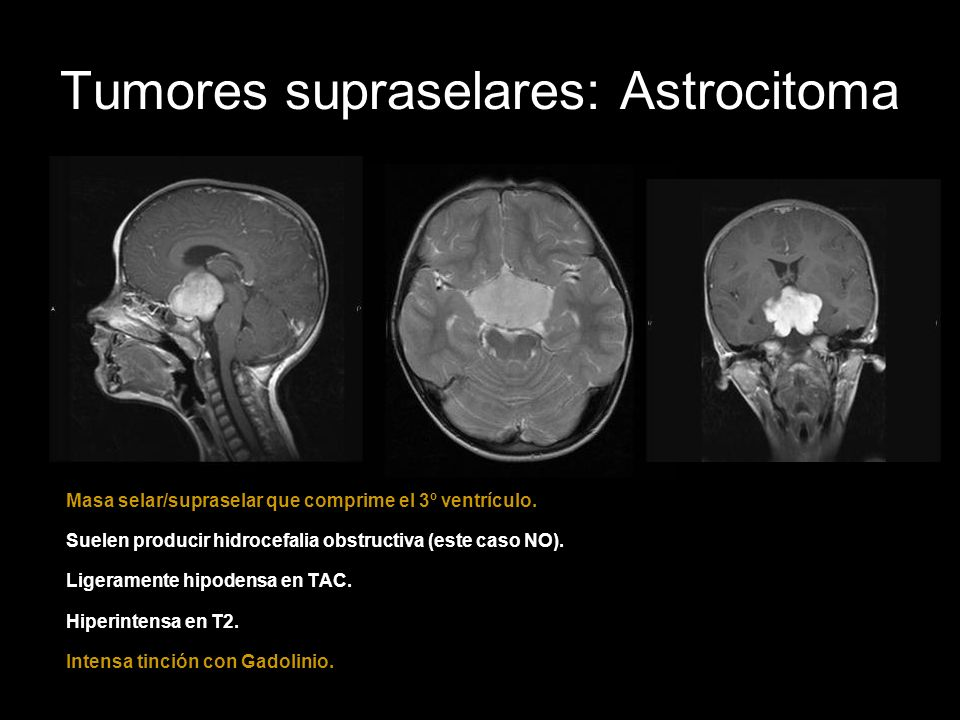 Tumores supraselares: Astrocitoma