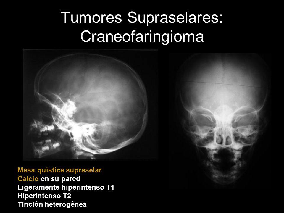 Tumores Supraselares: Craneofaringioma
