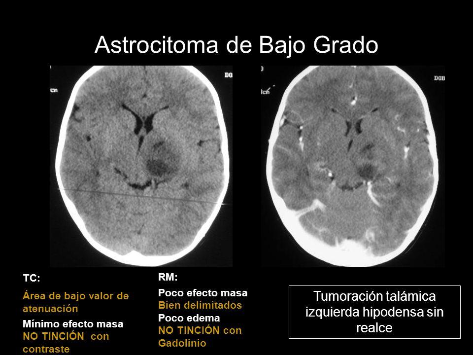 Astrocitoma de Bajo Grado