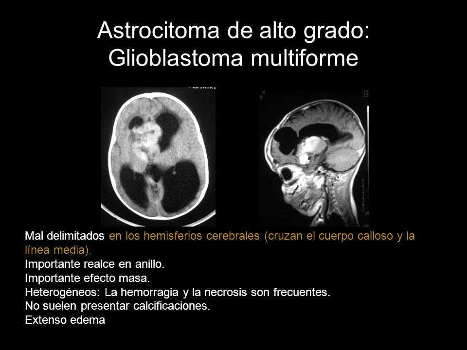 Astrocitoma de alto grado: Glioblastoma multiforme