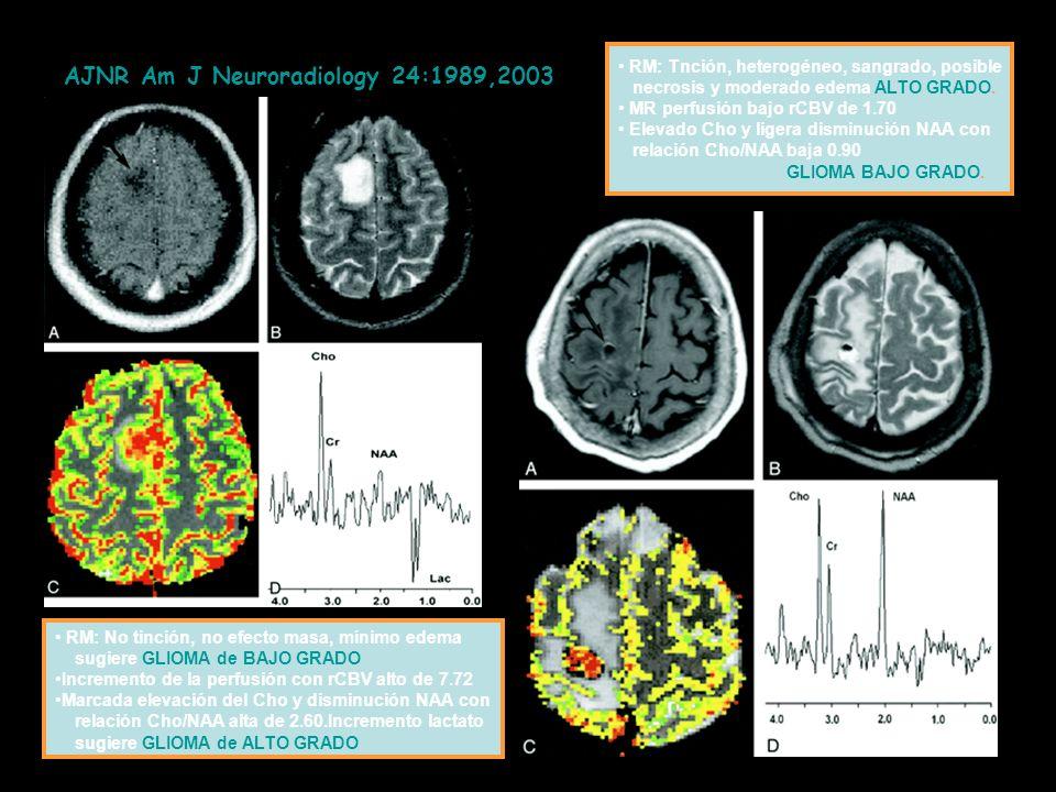 AJNR Am J Neuroradiology 24:1989,2003