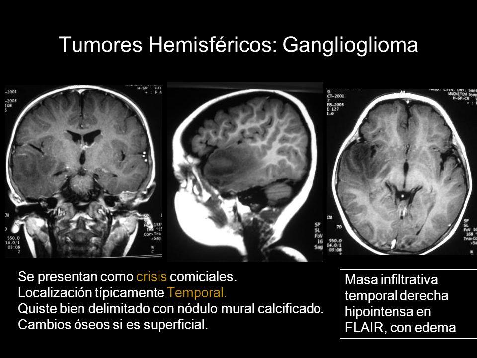 Tumores Hemisféricos: Ganglioglioma