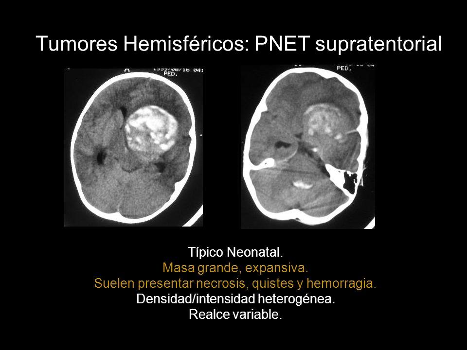 Tumores Hemisféricos: PNET supratentorial