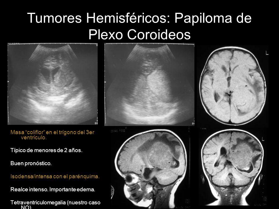 Tumores Hemisféricos: Papiloma de Plexo Coroideos
