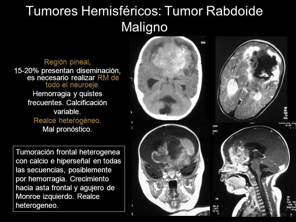 Tumores Hemisféricos: Tumor Rabdoide Maligno