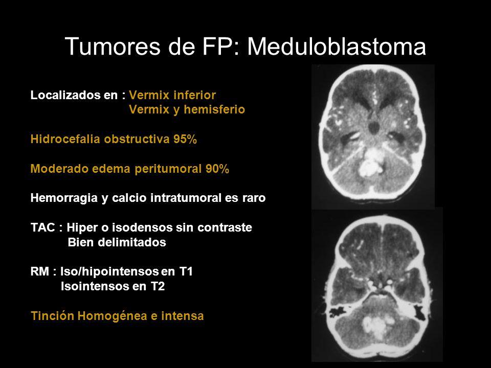 Tumores de FP: Meduloblastoma