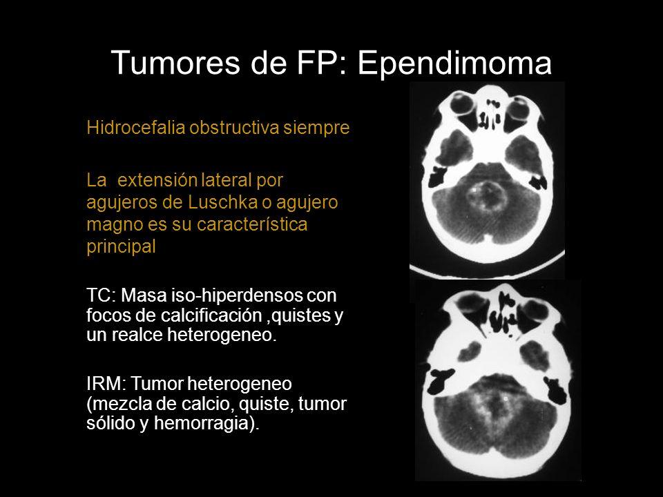 Tumores de FP: Ependimoma