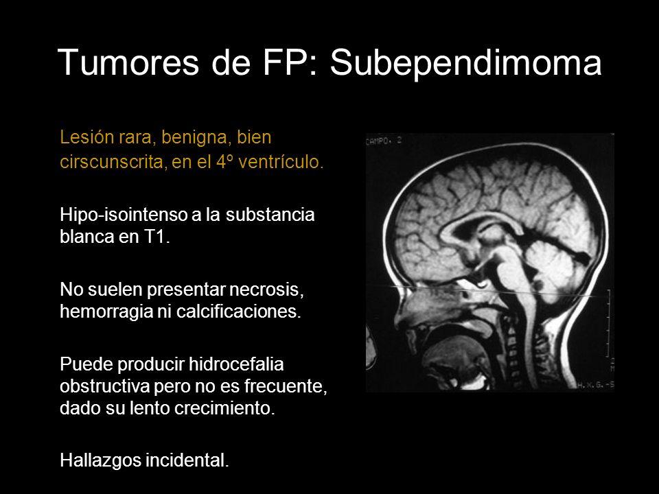 Tumores de FP: Subependimoma