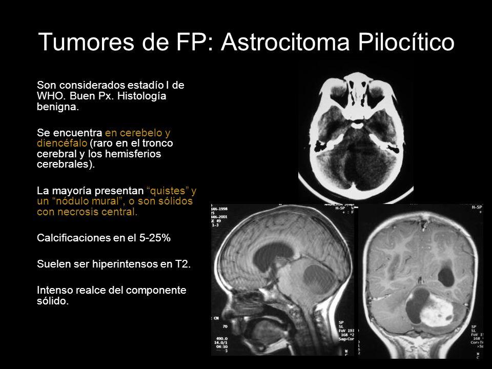 Tumores de FP: Astrocitoma Pilocítico