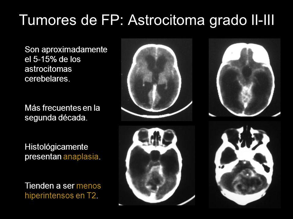 Tumores de FP: Astrocitoma grado II-III