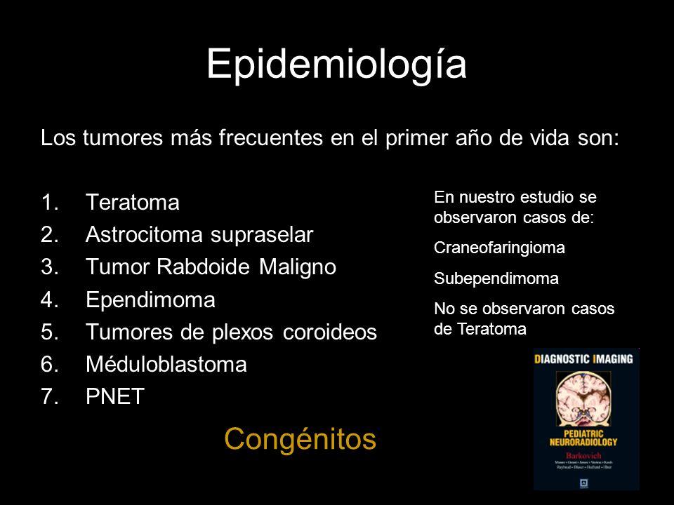 Epidemiología Congénitos