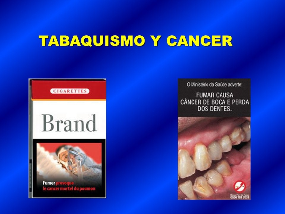 TABAQUISMO Y CANCER