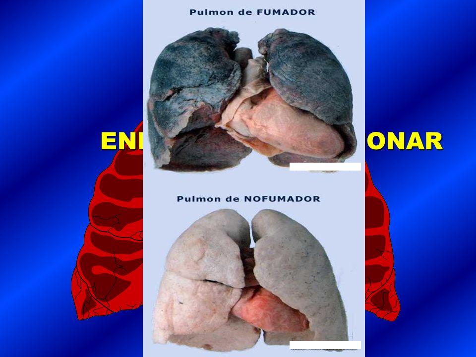 TABAQUISMO Y ENFERMEDAD PULMONAR