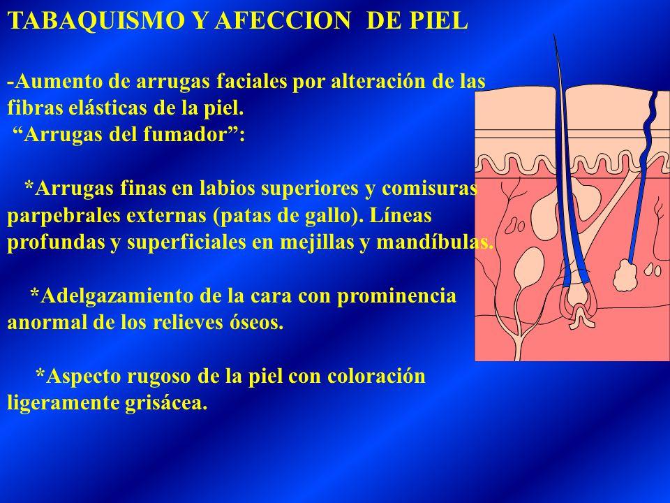 TABAQUISMO Y AFECCION DE PIEL
