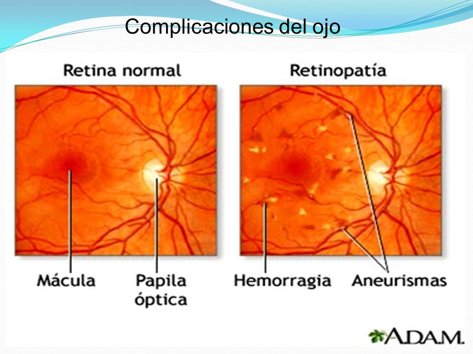 Complicaciones del ojo