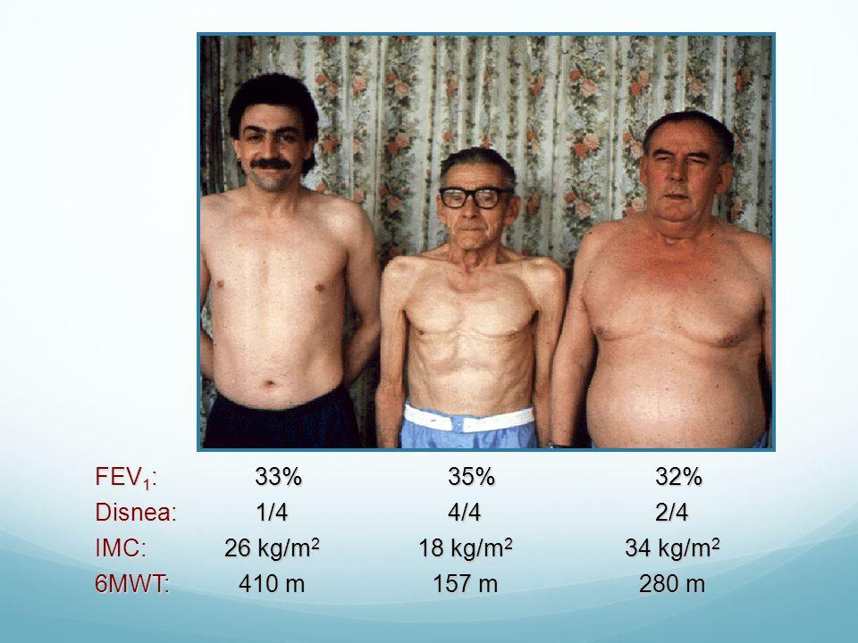 FEV1: 33% 35% 32% Disnea: IMC: 6MWT: 2/4 34 kg/m2 280 m 4/4 18 kg/m2
