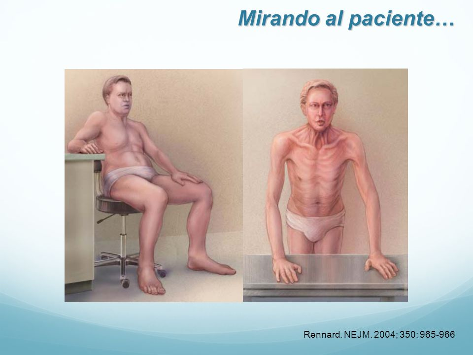 Mirando al paciente… Rennard. NEJM. 2004; 350: 965-966 17