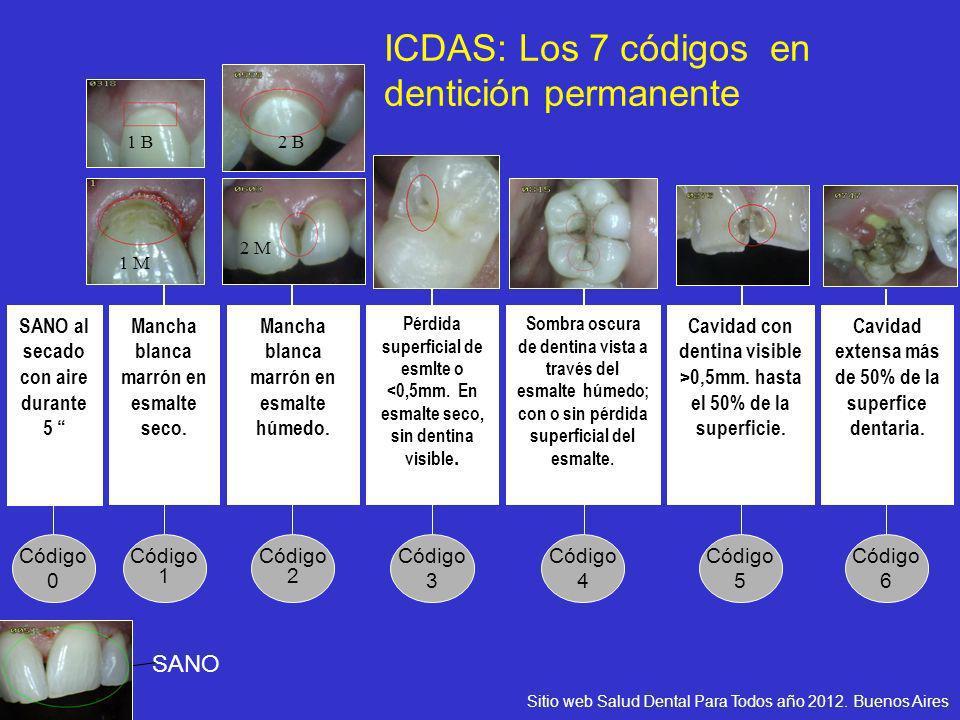 ICDAS: Los 7 códigos en dentición permanente