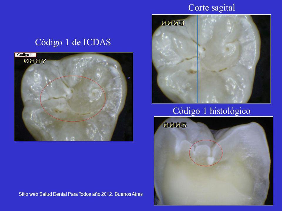 Corte sagital Código 1 de ICDAS Código 1 histológico