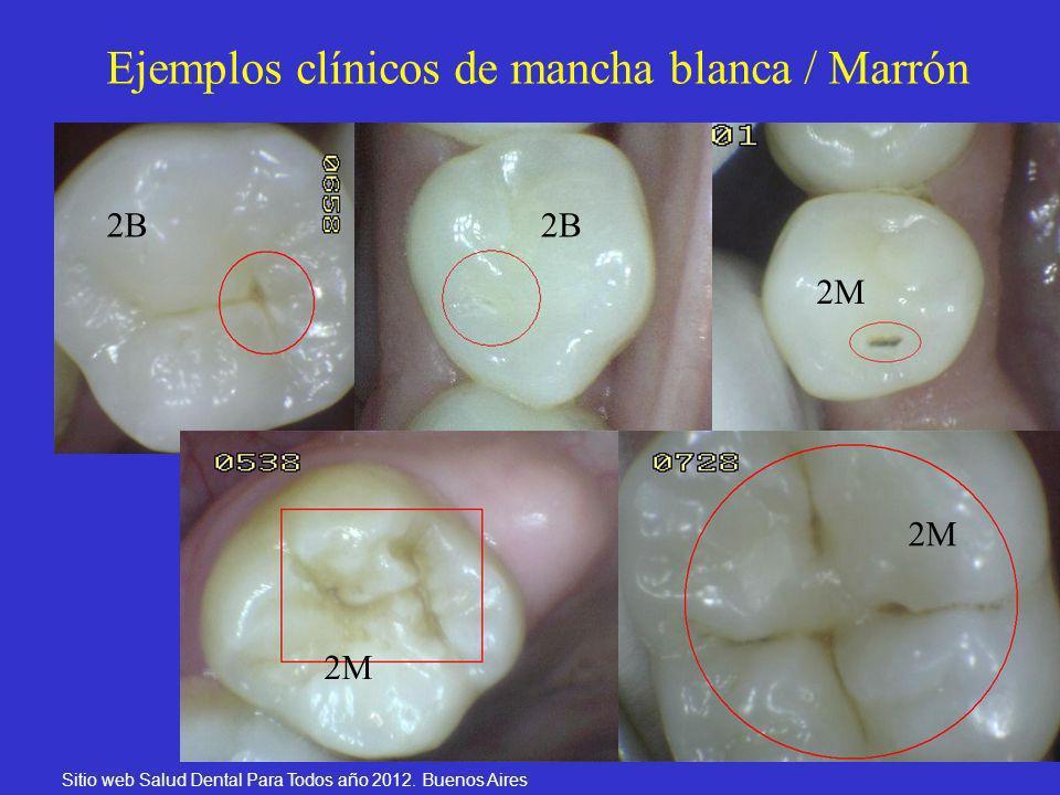 Ejemplos clínicos de mancha blanca / Marrón