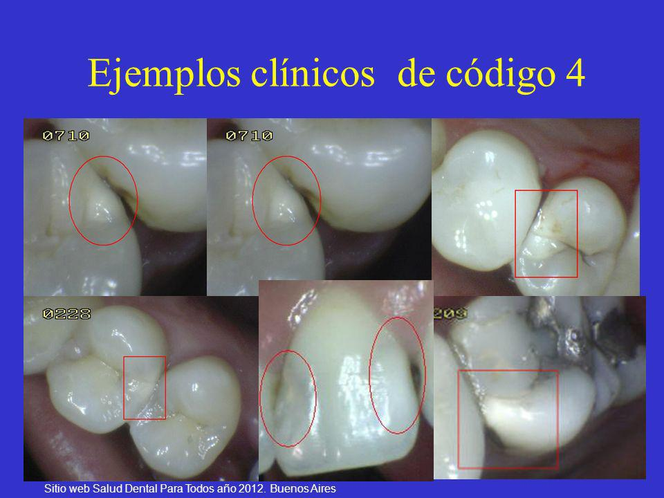 Ejemplos clínicos de código 4