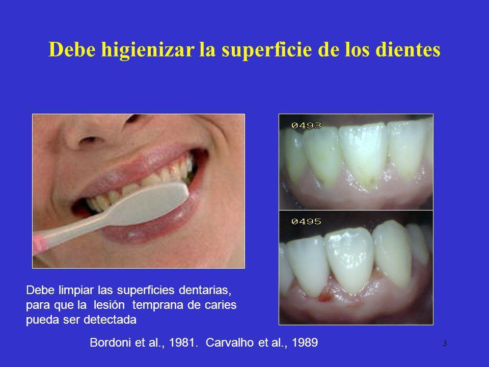 Debe higienizar la superficie de los dientes