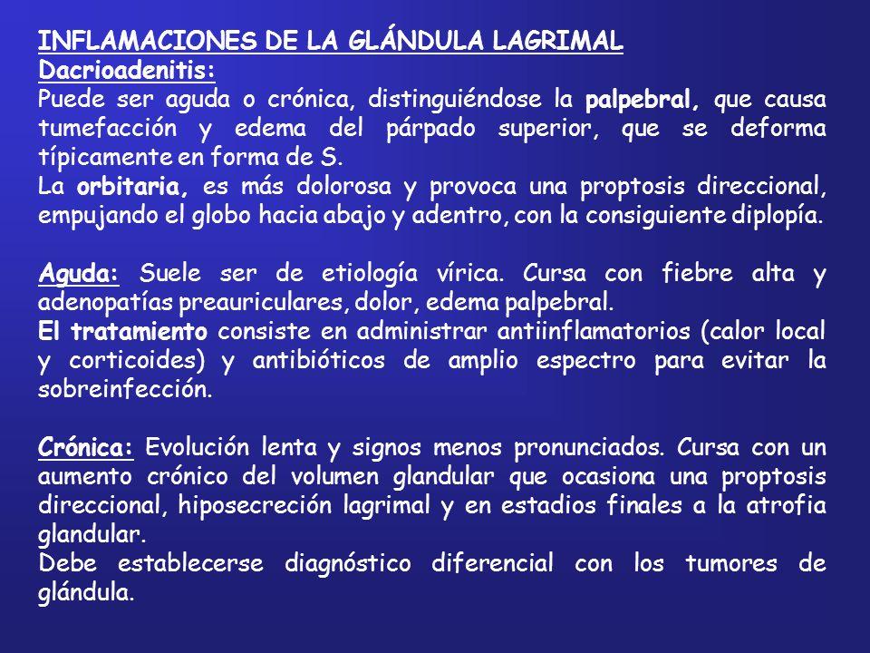 INFLAMACIONES DE LA GLÁNDULA LAGRIMAL