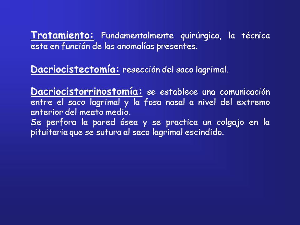 Dacriocistectomía: resección del saco lagrimal.