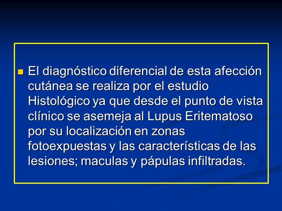 El diagnóstico diferencial de esta afección cutánea se realiza por el estudio Histológico ya que desde el punto de vista clínico se asemeja al Lupus Eritematoso por su localización en zonas fotoexpuestas y las características de las lesiones; maculas y pápulas infiltradas.
