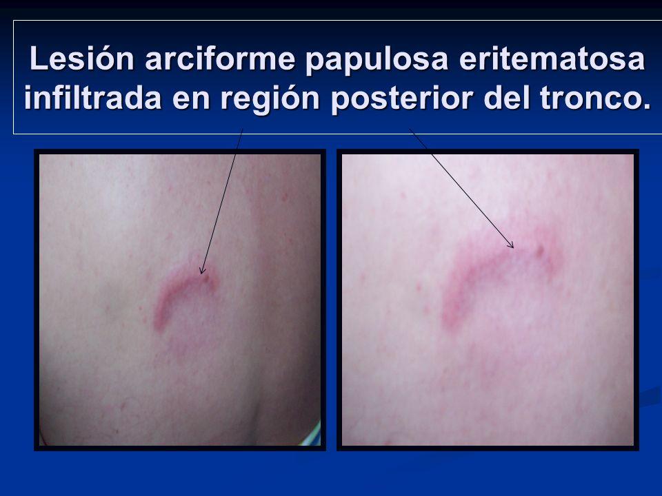 Lesión arciforme papulosa eritematosa infiltrada en región posterior del tronco.