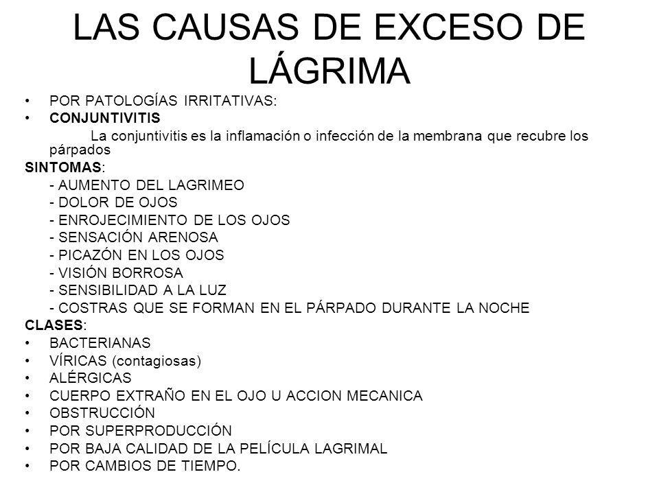LAS CAUSAS DE EXCESO DE LÁGRIMA