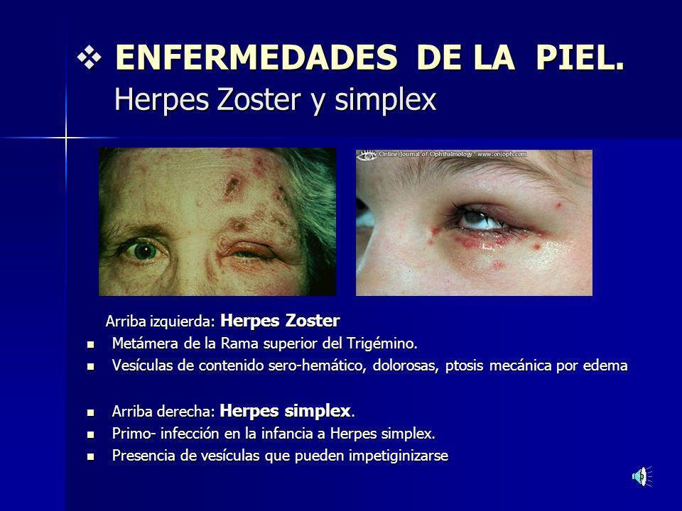 ENFERMEDADES DE LA PIEL. Herpes Zoster y simplex