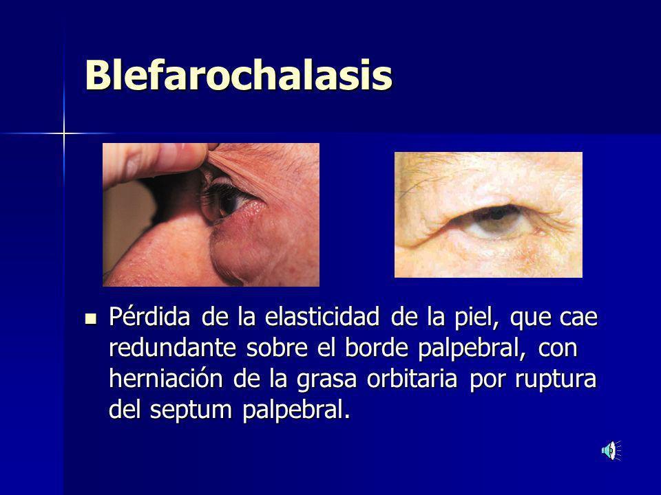 Blefarochalasis