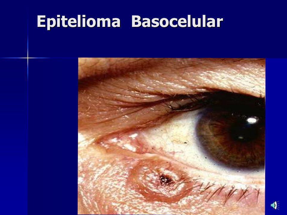 Epitelioma Basocelular