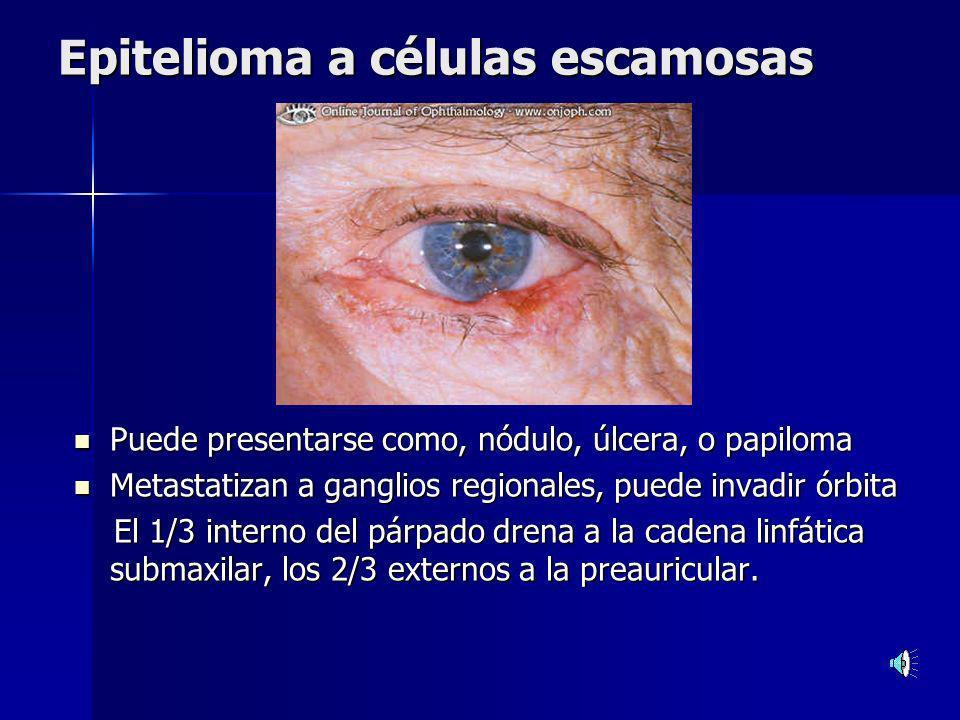 Epitelioma a células escamosas