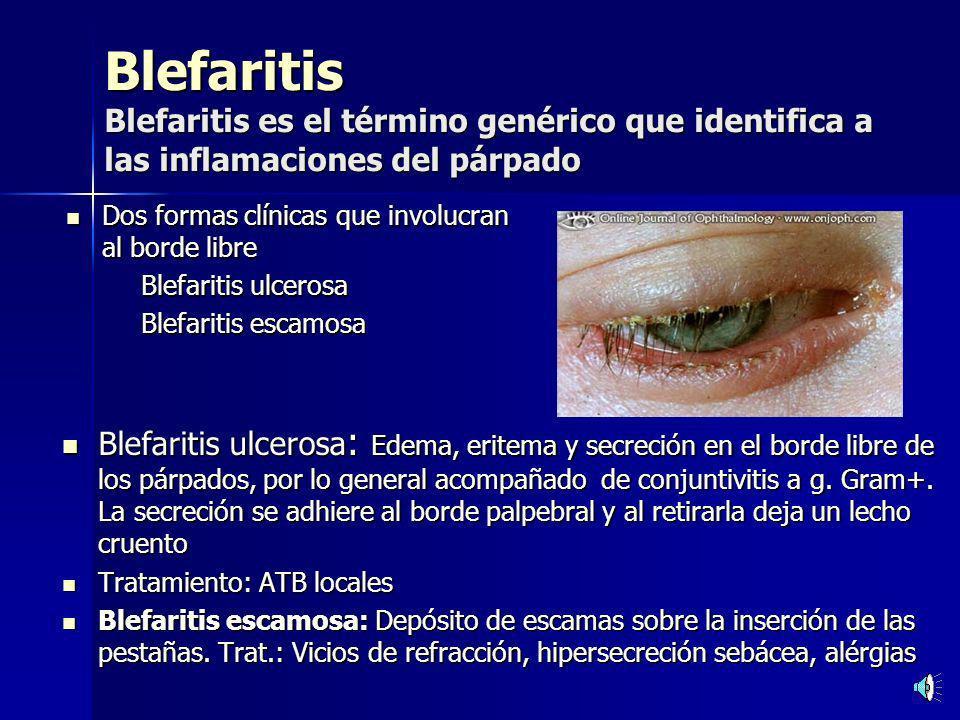 Blefaritis Blefaritis es el término genérico que identifica a las inflamaciones del párpado