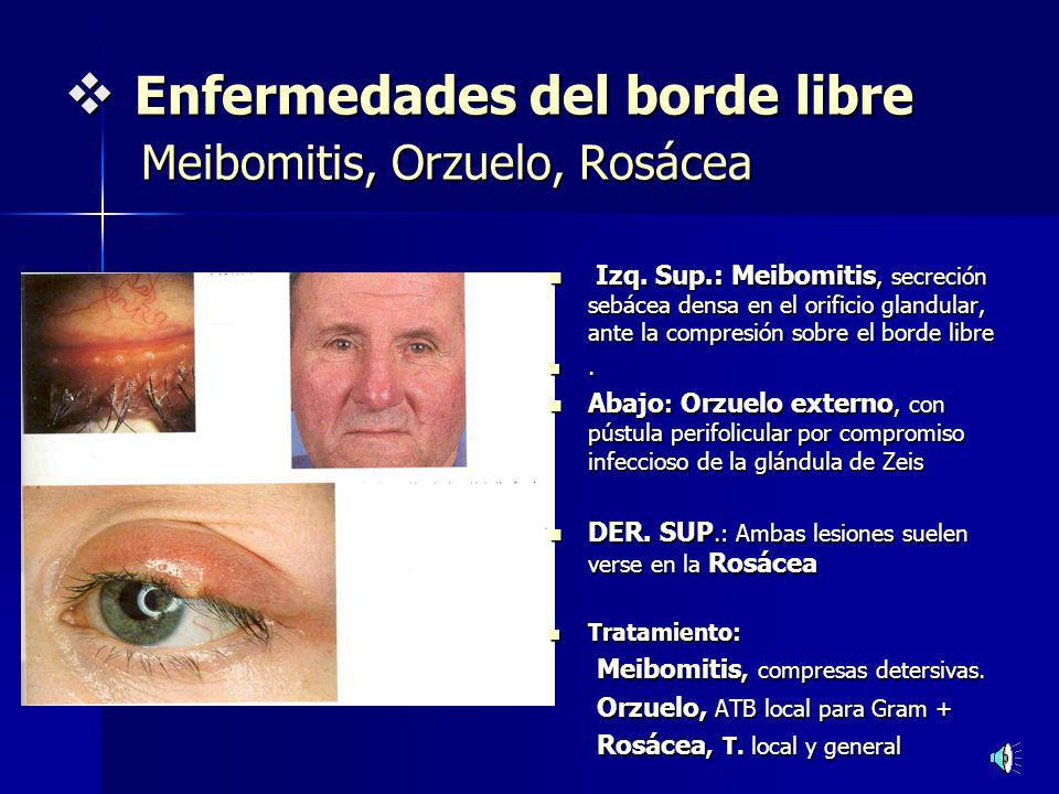 Enfermedades del borde libre Meibomitis, Orzuelo, Rosácea