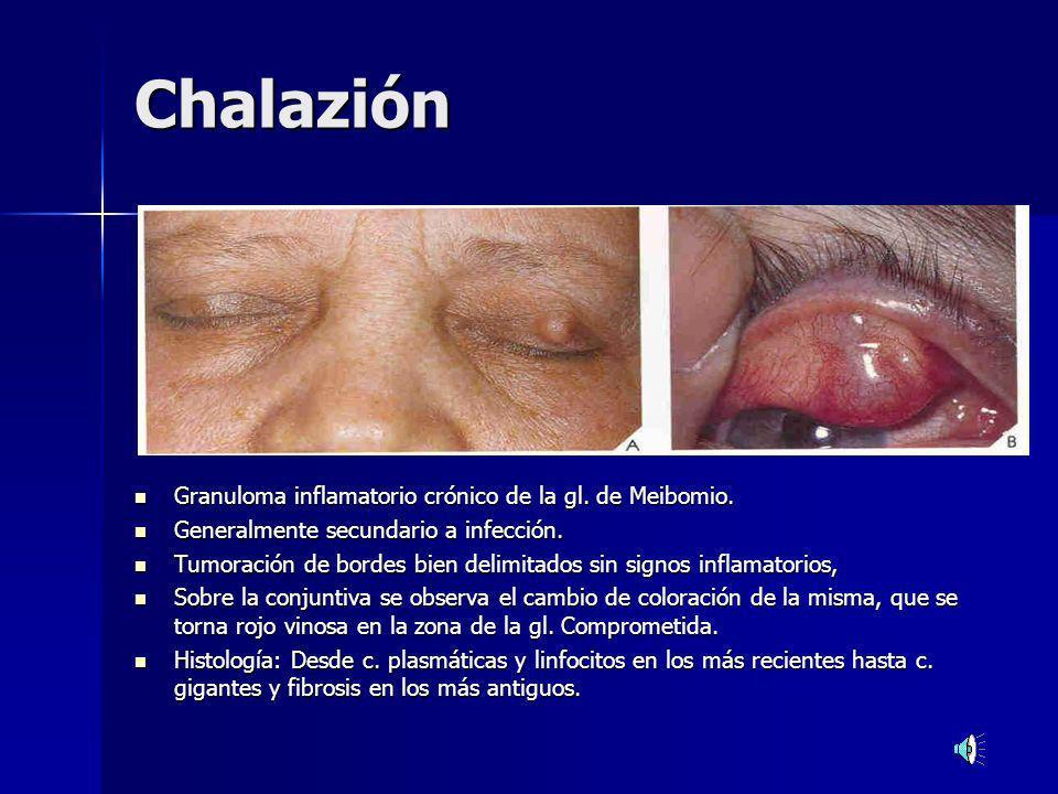 Chalazión Granuloma inflamatorio crónico de la gl. de Meibomio.